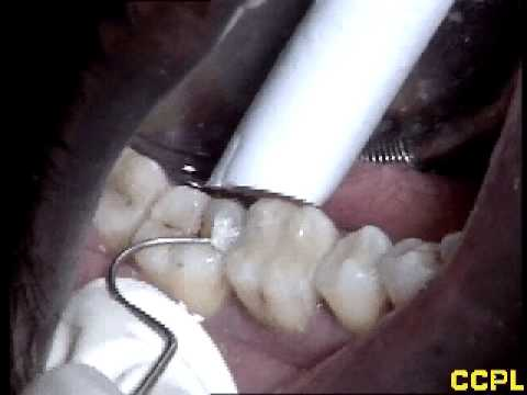 Video Dental Cavity and Fillings