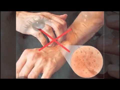 Video Panduan Pengobatan Penyakit Cacar Air