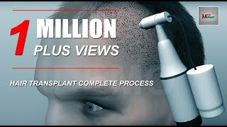 Download Video Hair Transplant 3d Animation MP3 3GP MP4