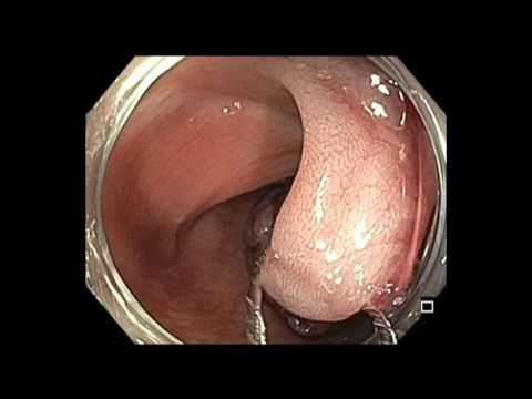Colonoscopy: Sigmoid Colon Pedunculated Polyp Resection - Large Polyp