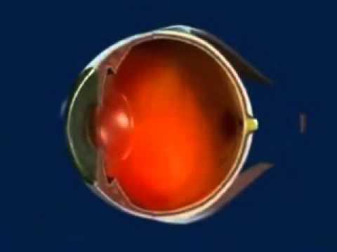Лазерная коррекция зрения в нии гб