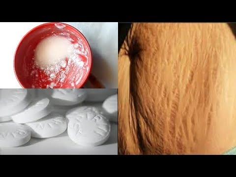 Klotrimasol für die Person von den Pigmentflecken