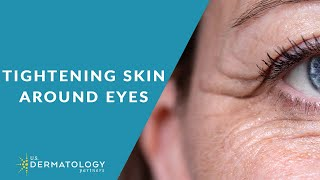 How to Tighten Skin Around Eyes - Reduce Wrinkles
