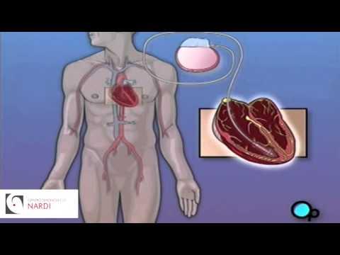 Vene varicose di sintomi in un piccolo bacino