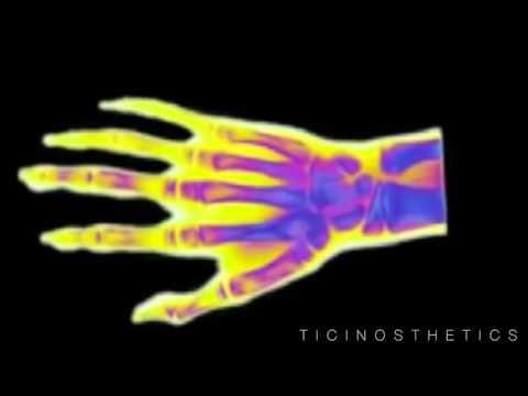 Brividi temperatura dolori articolari