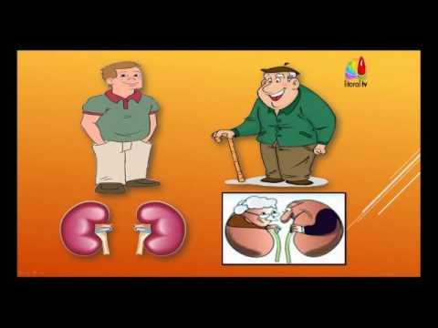 Sociedad para el Estudio de la hipertensión