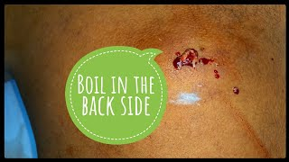 boils being squeezed at home - TH-Clip