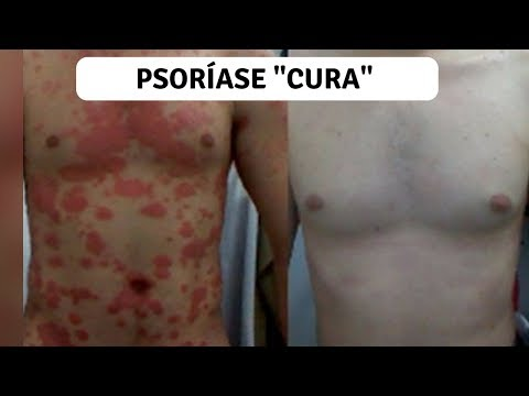 Eczema em crianças até dois anos