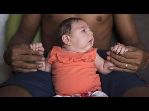 Video Zika Virus : Symptoms & Treatment || Health Tips