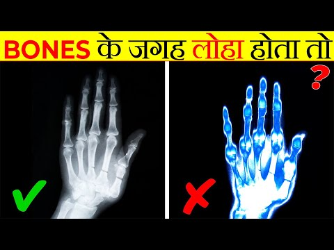 अगर हड्डी की जगह लोहा होता तो? | What If You Changed Your Bones to Metal | Most Amazing Facts |FE#48