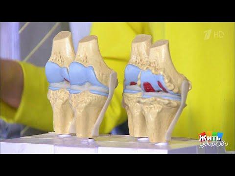 Остеоартроз: боль в коленных суставах. Жить здорово! (22.12.2017)