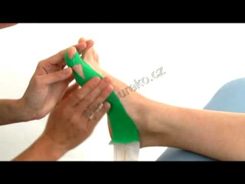 Jod + analginum z szyszek kciuka