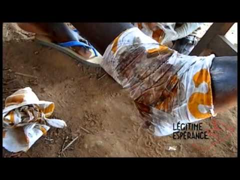 Le traitement de la varice variqueuse à rostove
