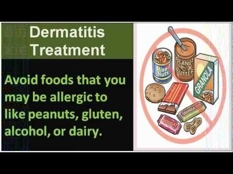 Edas da dermatite atopic