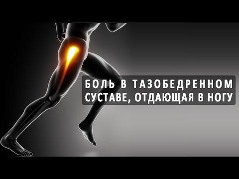 Боль в тазобедренном суставе, которая отдает в ногу