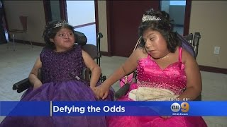 Formerly Conjoined Twins Preview Their Quinceanera Dresses At Childrens Hospital LA Event