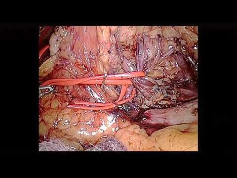 Sintomi vezikulita negli uomini