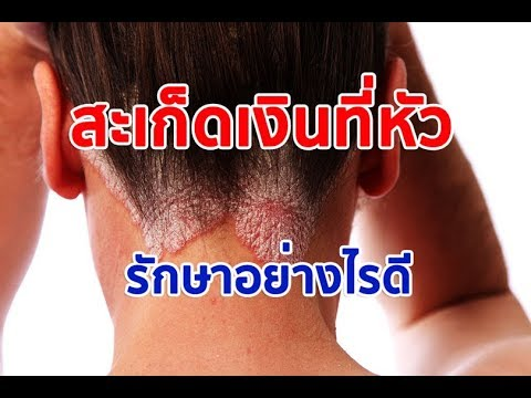 การรักษา neurodermatitis Psychosomatics