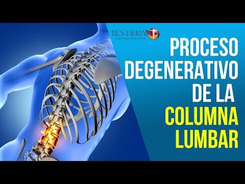 Protrusión discal c4 c5 columna cervical C6 lo que es