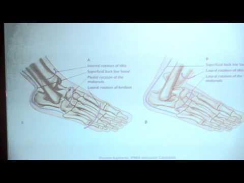 Guz na powierzchni wewnętrznej części stopy