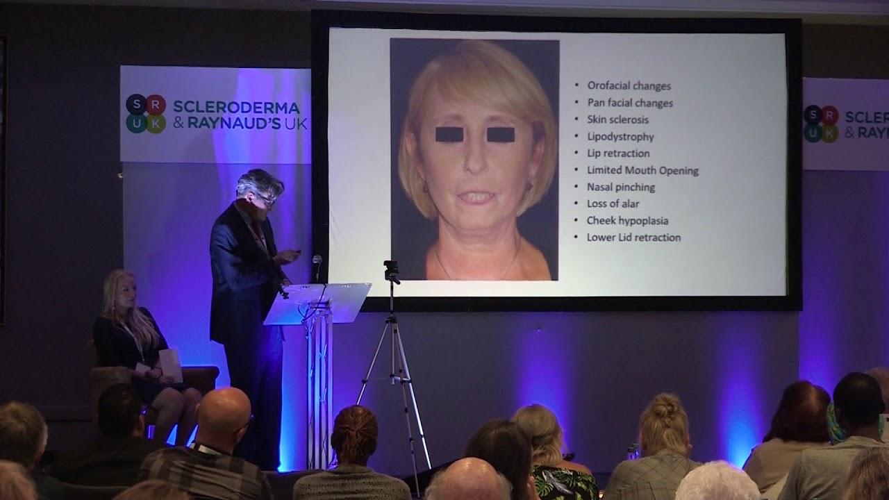 Peter Butler and Lynn Steblecki: Plastic Surgery