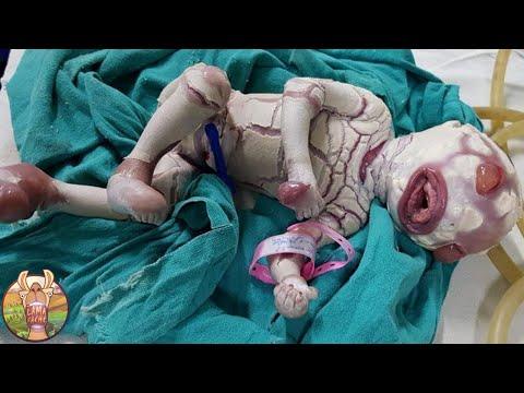 10 Bébés Inhabituels Qui Existent Vraiment !