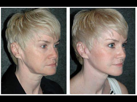 Mask ng flaxseed langis para sa facial acne