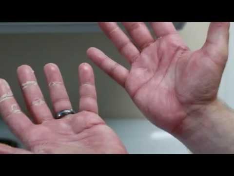 Strephexopodia noworodka, jak leczyć