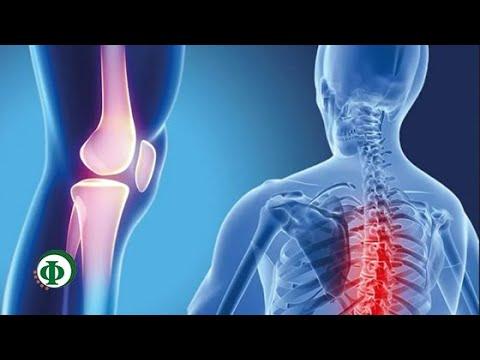 Остеохондроз лечение при гастрите