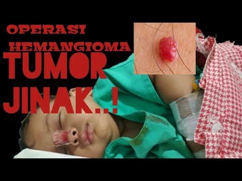 Hpv treatment biopsy