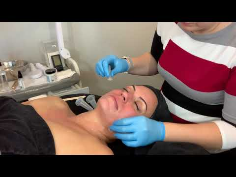 Facial Cupping Protocol! Learn the art of light cupping! - YouTube