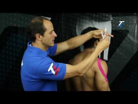 Cómo desarrollar las articulaciones de los dedos después de una fractura