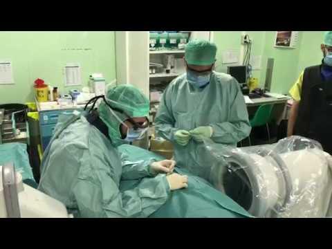 Sintomi r osteocondrosi della colonna lombare Fase 3