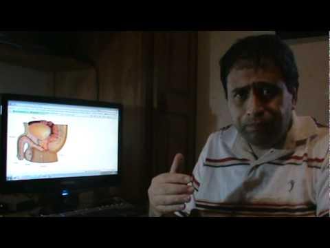 Técnica de ultrasonido de próstata