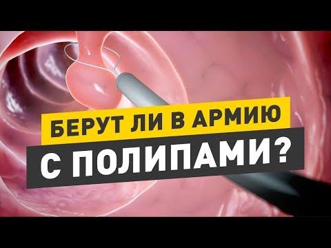 Таблетки от сахара в крови 2 степени