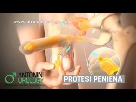 Prostata il video esame urologo
