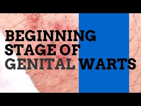 Cancer de prostata gleason 8