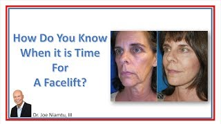 How Do You Know When it is Time for a Facelift?