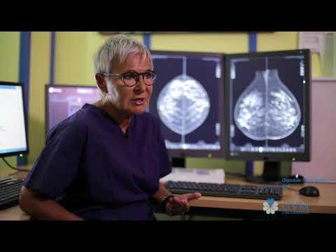 Della prostata dopo la radioterapia