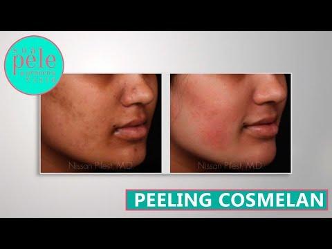 Jak se zbavit fuzz obličeje