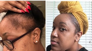 GROW EDGES BACK IN DAYS (ACTUALLY WORKS!! )