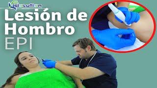 Tratamiento del hombro lesionado por el pádel mediante EPI o Electrolisis