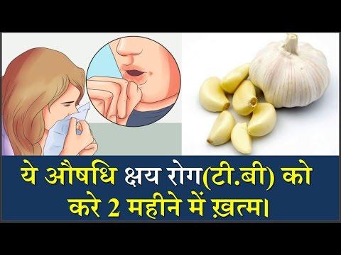 Video ये औषधि क्षय रोग(T.B) को करें सिर्फ दो महीने में ख़त्म/T.B Rog Ka Ayyurvedic Ilaaj,Tuberculosis illaj