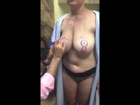 Kung paano dagdagan ang dibdib na may miostimulyatory