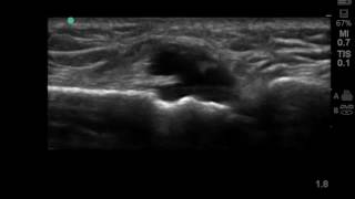 Pretibial ganglion on ultrasound