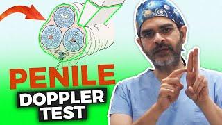 Penile Doppler In Hindi | Penile doppler test price
