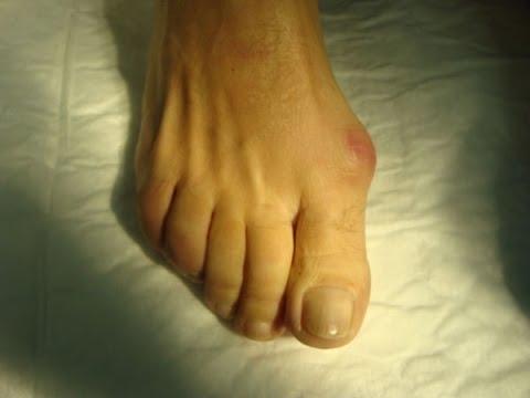 Inflamația musculară a genunchiului