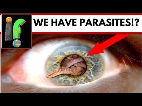 มันแตกต่างจาก saprophytes ปรสิต