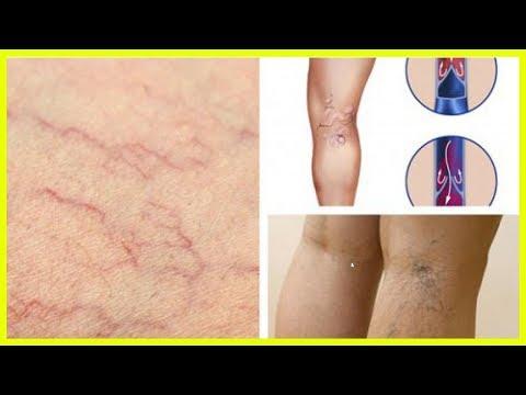 Die Salben für die Behandlung der vaskulösen Sternchen auf der Person