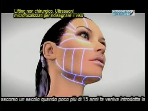 Lifting senza bisturi, macchina perfetta ad ultrasuoni che ridisegna il viso
